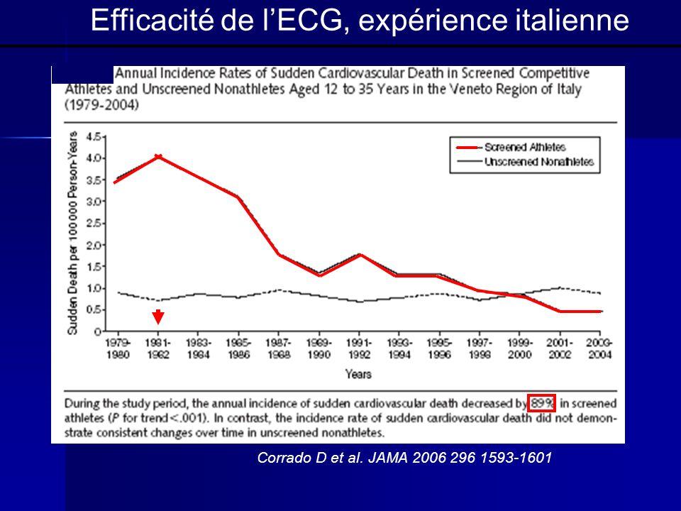 Efficacité de l'ECG, expérience italienne