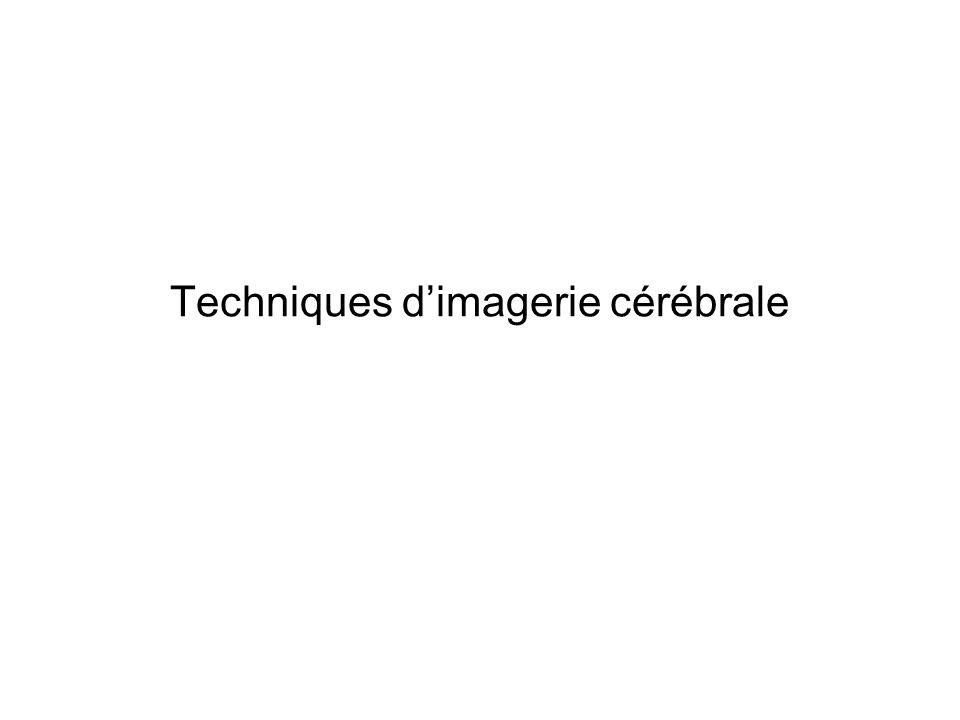 Techniques d'imagerie cérébrale
