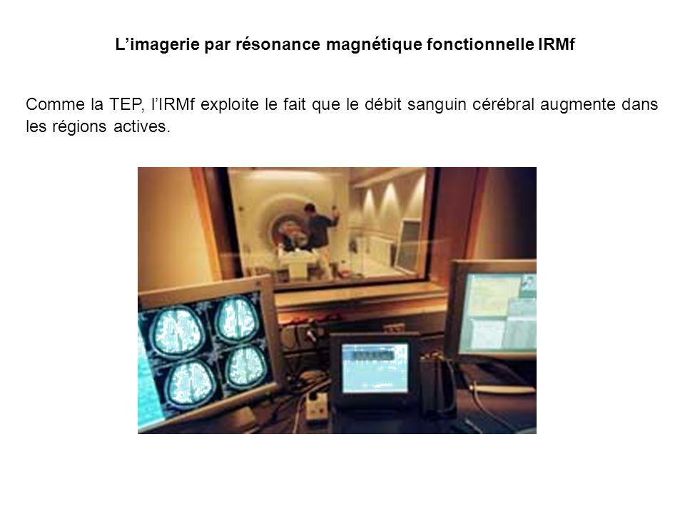 L'imagerie par résonance magnétique fonctionnelle IRMf