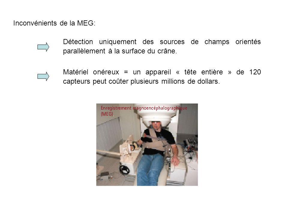 Inconvénients de la MEG: