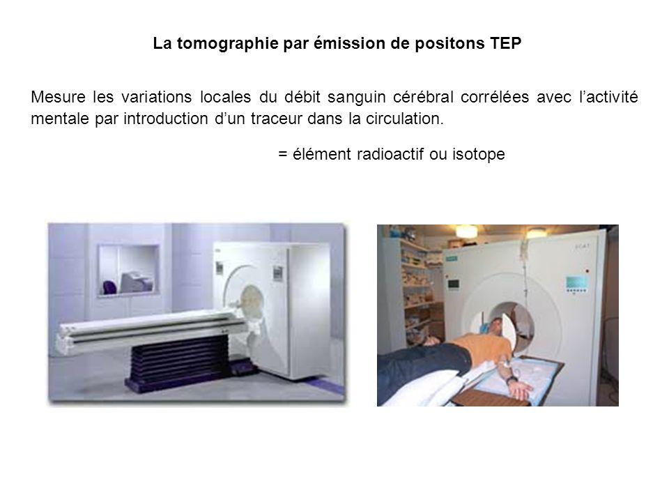 La tomographie par émission de positons TEP