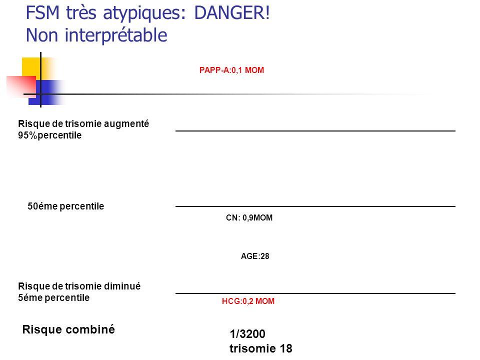 FSM très atypiques: DANGER! Non interprétable