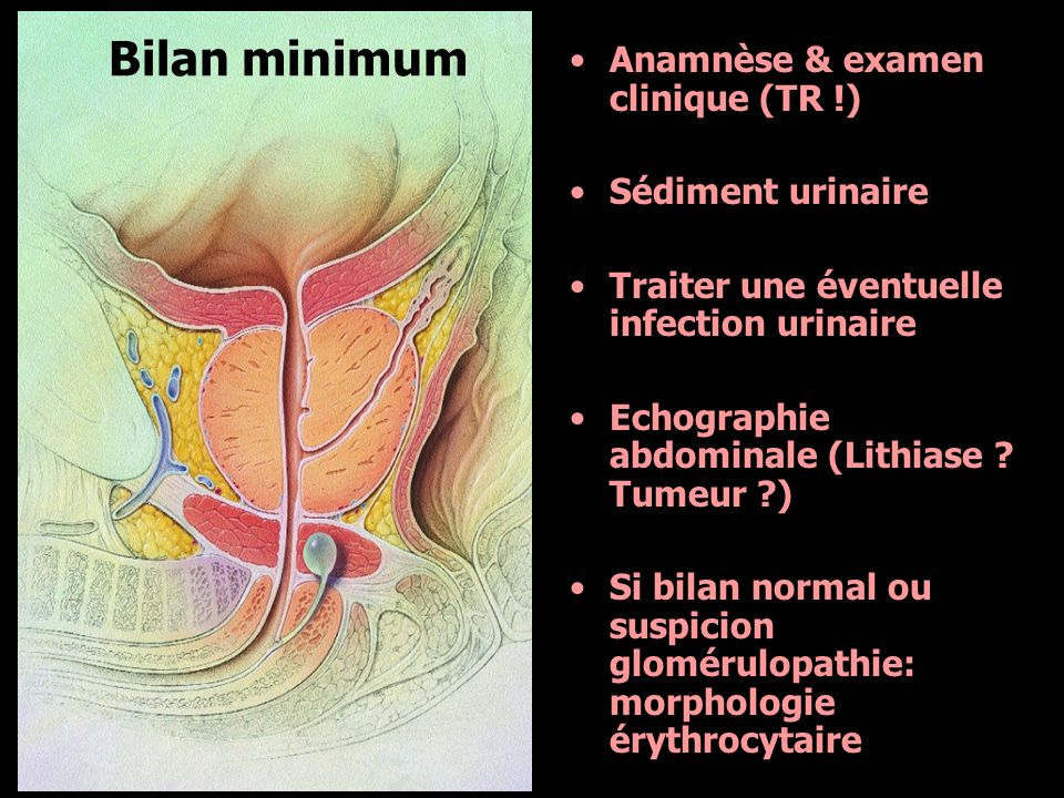 Bilan minimum Anamnèse & examen clinique (TR !) Sédiment urinaire