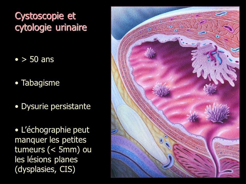Cystoscopie et cytologie urinaire