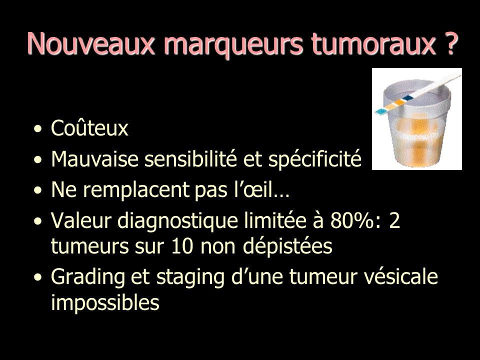 Nouveaux marqueurs tumoraux