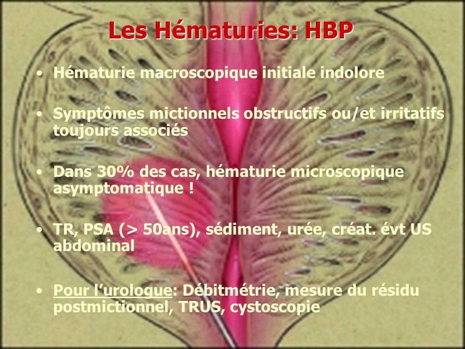 Les Hématuries: HBP Hématurie macroscopique initiale indolore