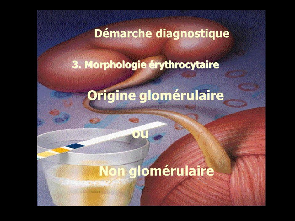 Origine glomérulaire ou Non glomérulaire Démarche diagnostique
