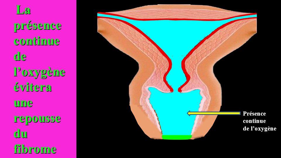 La présence continue de l'oxygène évitera une repousse du fibrome