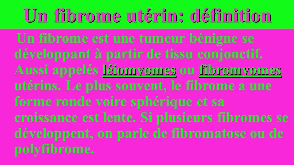 Un fibrome utérin: définition