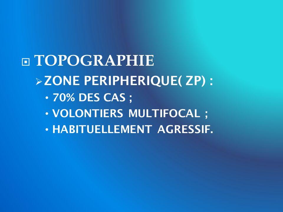 TOPOGRAPHIE ZONE PERIPHERIQUE( ZP) : 70% DES CAS ;