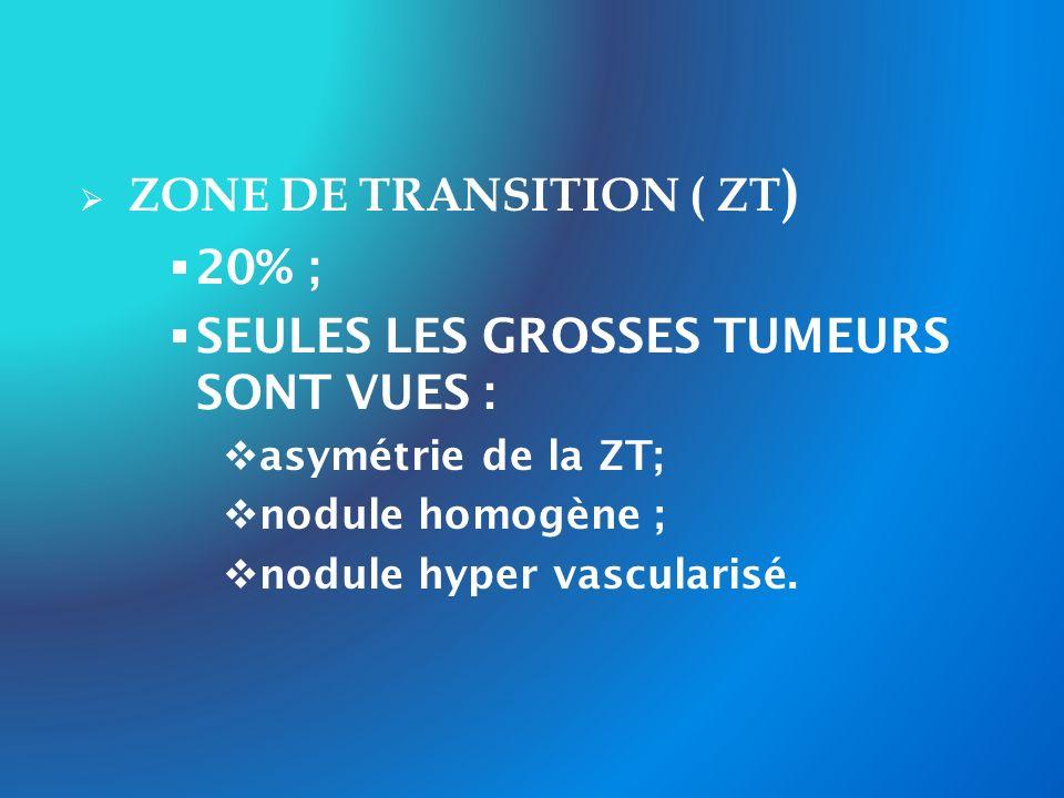 ZONE DE TRANSITION ( ZT) 20% ; SEULES LES GROSSES TUMEURS SONT VUES :
