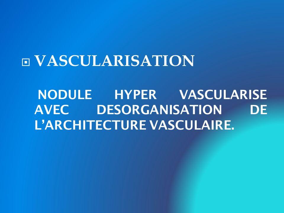 VASCULARISATION NODULE HYPER VASCULARISE AVEC DESORGANISATION DE L'ARCHITECTURE VASCULAIRE.