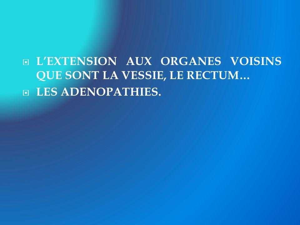 L'EXTENSION AUX ORGANES VOISINS QUE SONT LA VESSIE, LE RECTUM…