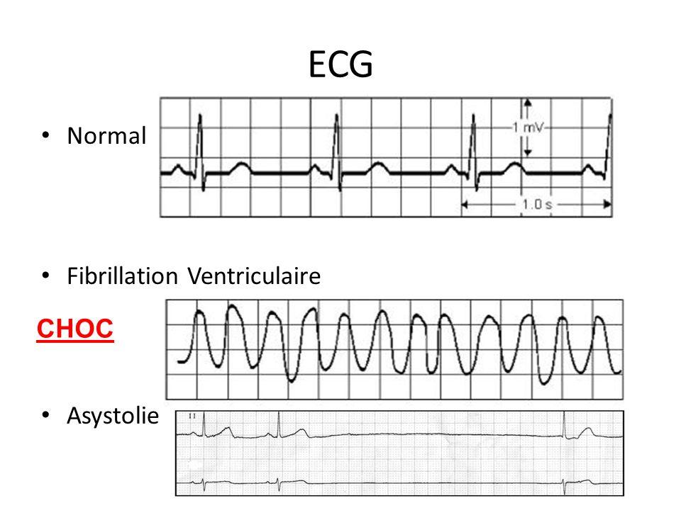 ECG Normal Fibrillation Ventriculaire Asystolie CHOC