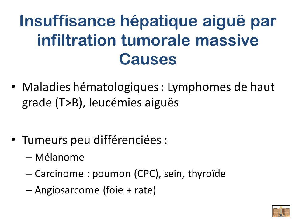 Insuffisance hépatique aiguë par infiltration tumorale massive Causes