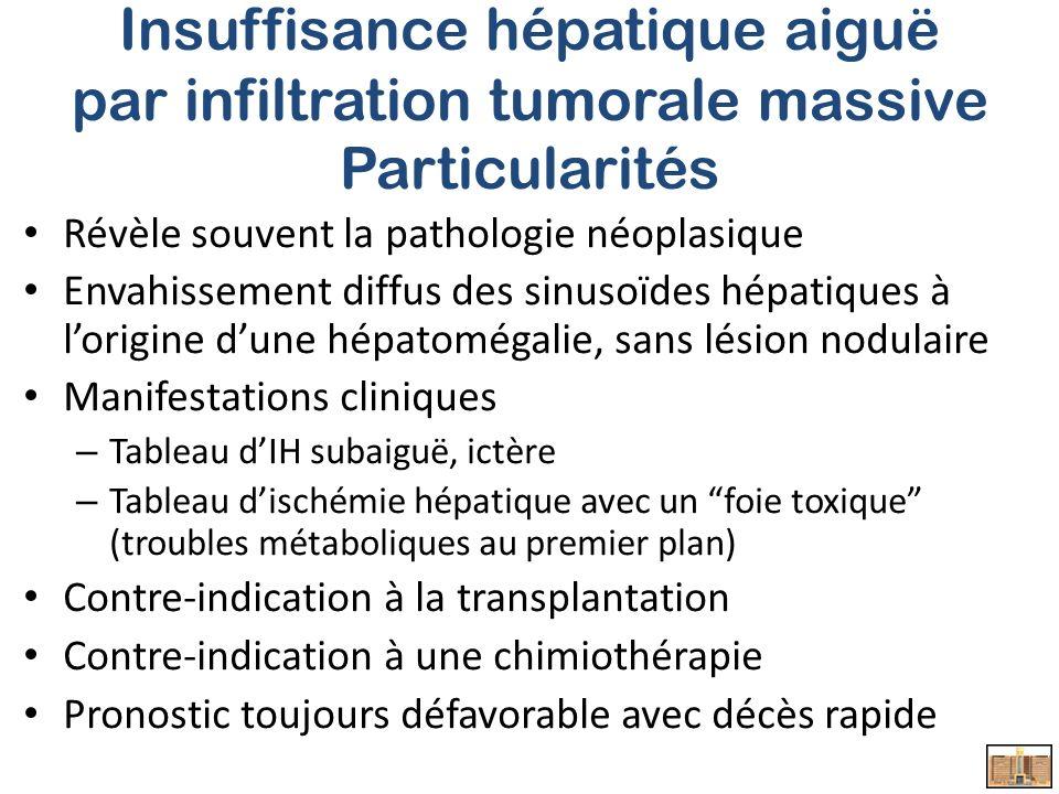 Insuffisance hépatique aiguë par infiltration tumorale massive Particularités