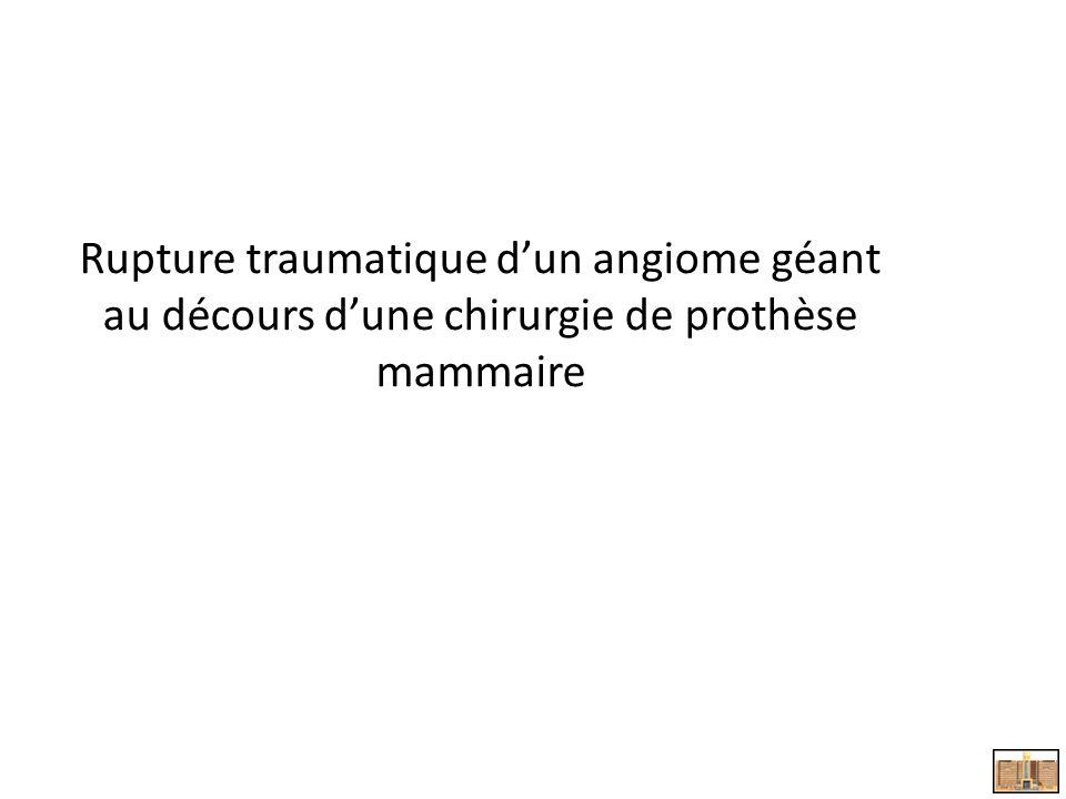 Rupture traumatique d'un angiome géant au décours d'une chirurgie de prothèse mammaire