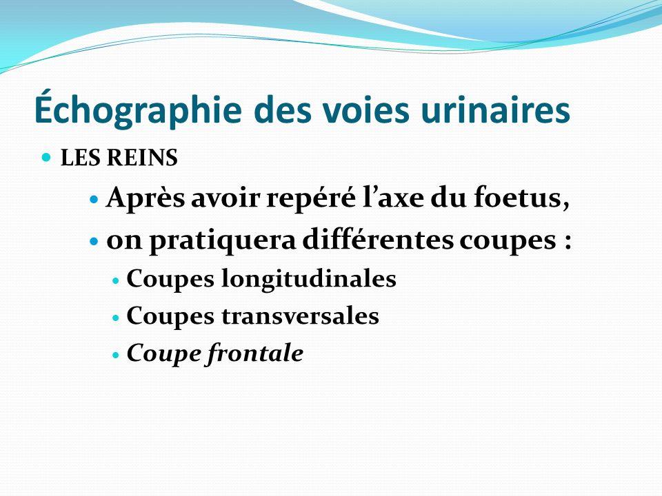 Échographie des voies urinaires