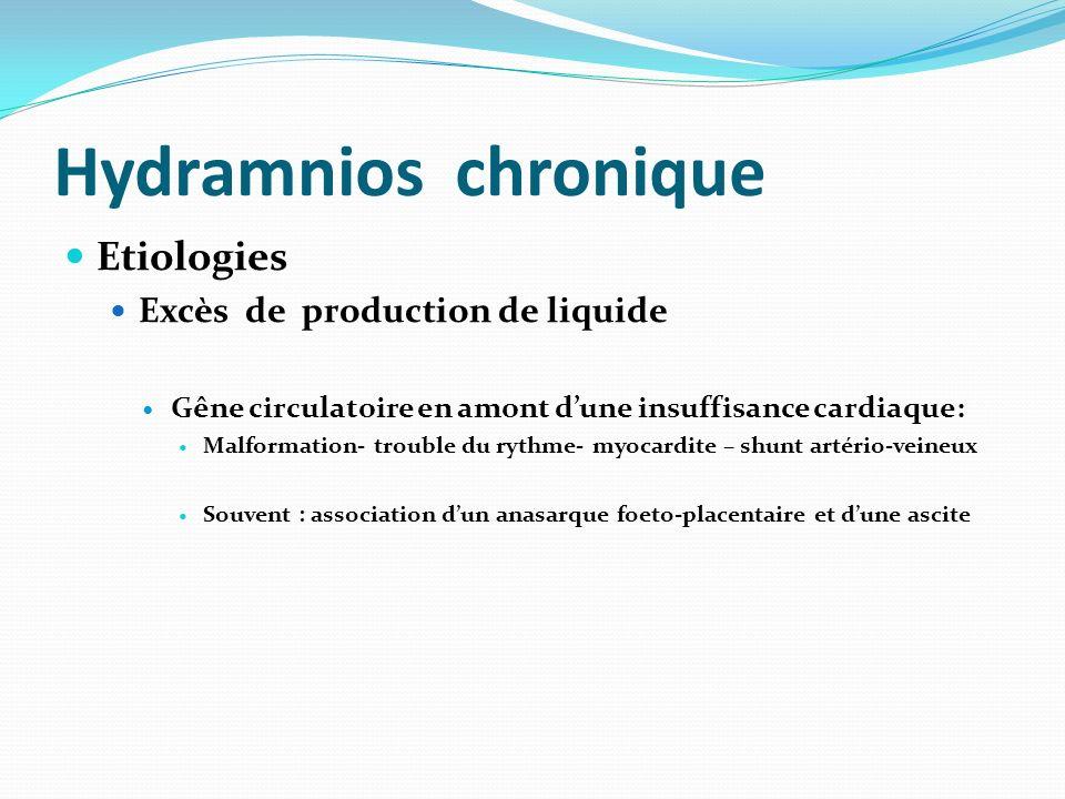 Hydramnios chronique Etiologies Excès de production de liquide