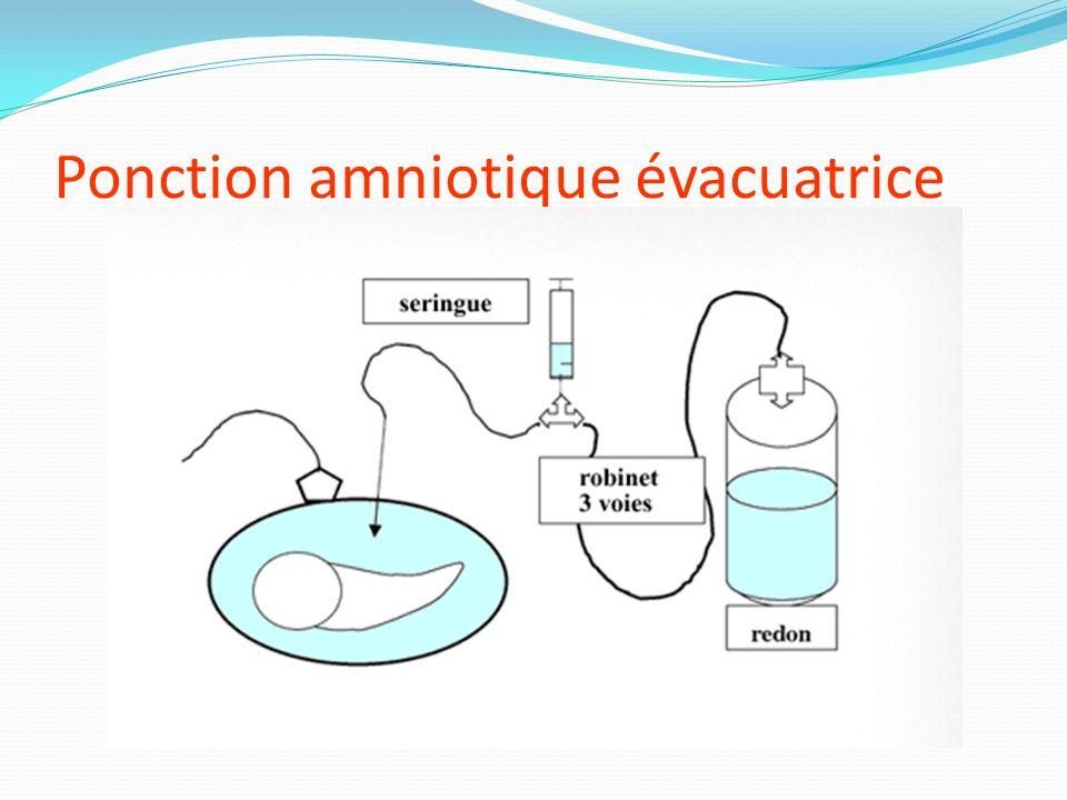 Ponction amniotique évacuatrice