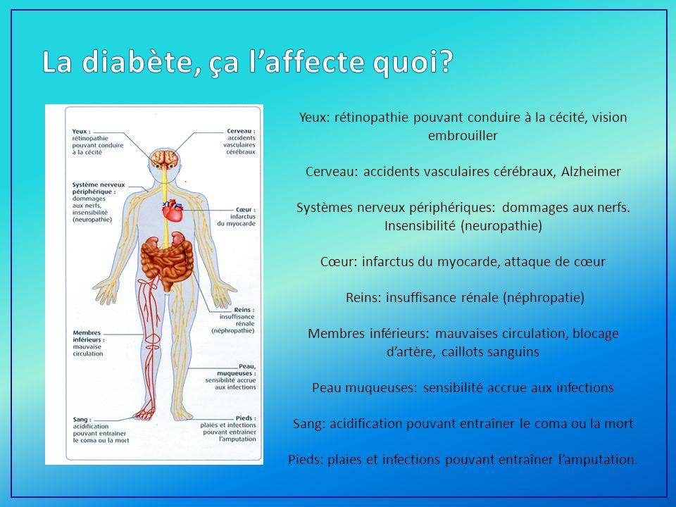 La diabète, ça l'affecte quoi