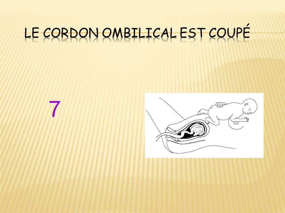 le cordon ombilical est coupé
