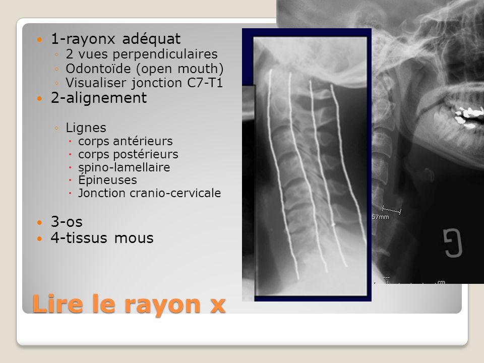 Lire le rayon x 1-rayonx adéquat 2-alignement 3-os 4-tissus mous