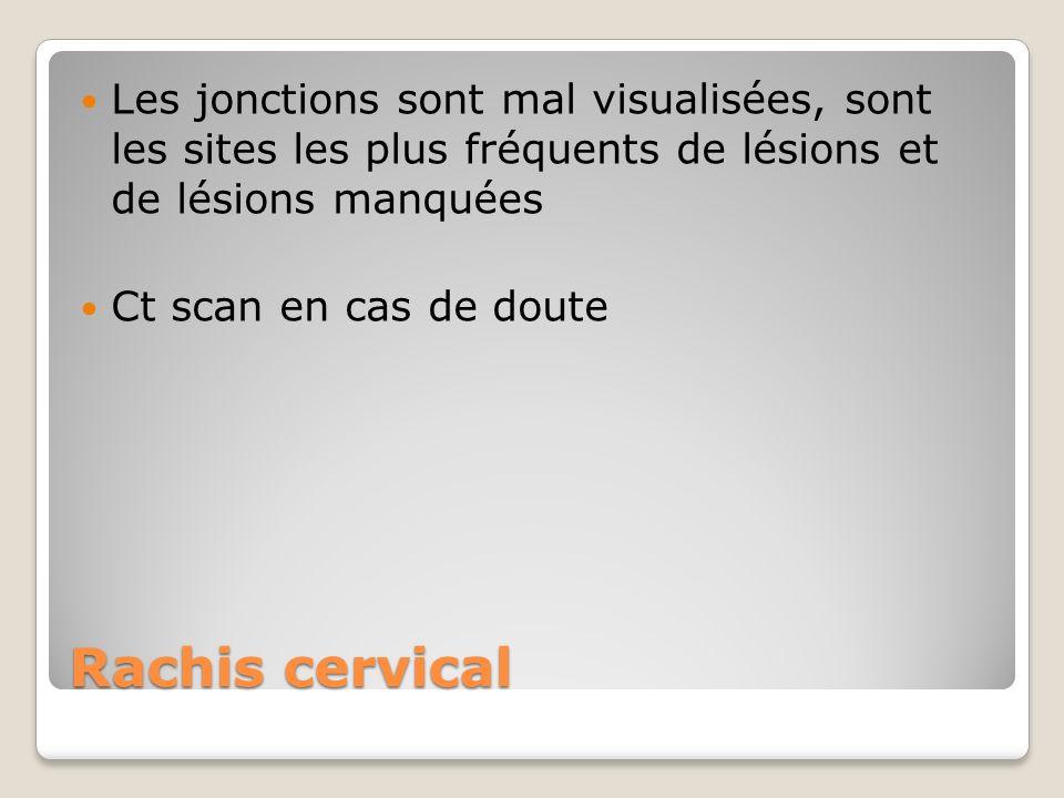 Les jonctions sont mal visualisées, sont les sites les plus fréquents de lésions et de lésions manquées
