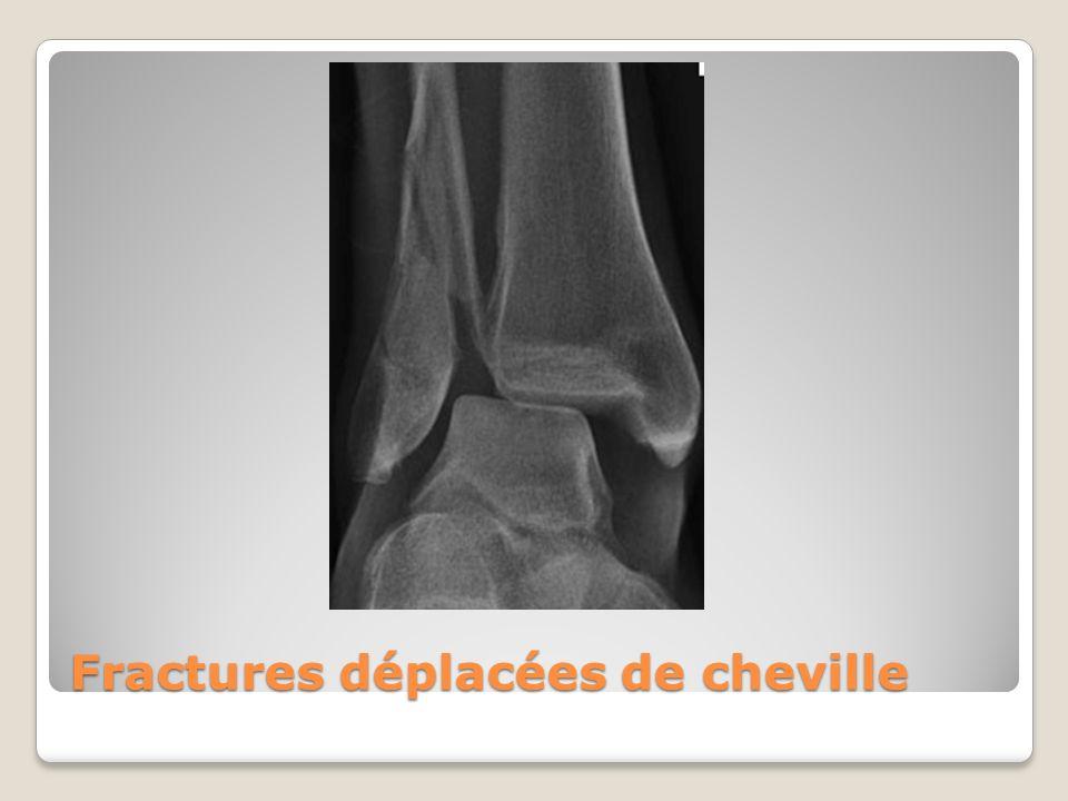 Fractures déplacées de cheville