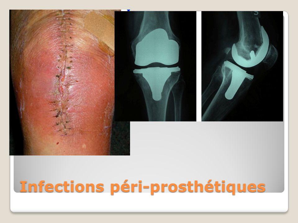 Infections péri-prosthétiques