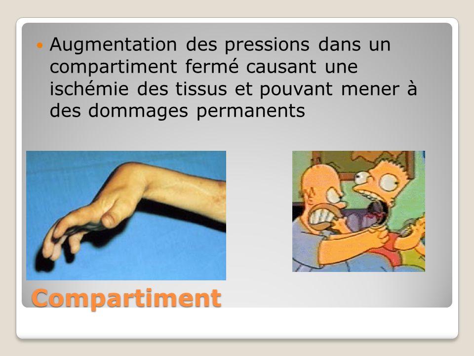 Augmentation des pressions dans un compartiment fermé causant une ischémie des tissus et pouvant mener à des dommages permanents