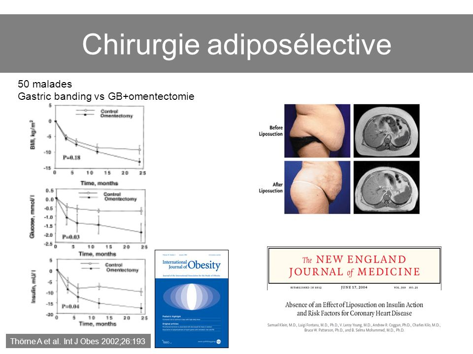Chirurgie adiposélective
