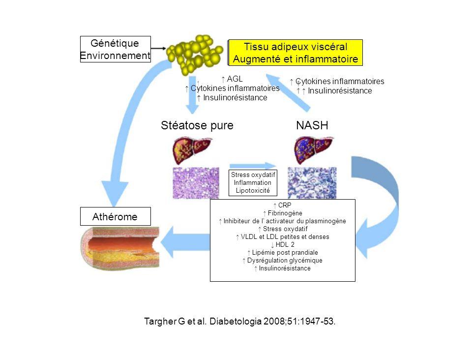 Stéatose pure NASH Génétique Tissu adipeux viscéral Environnement