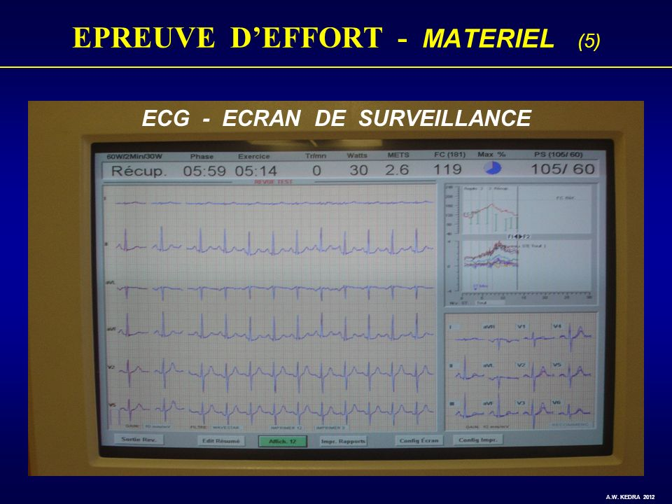 EPREUVE D'EFFORT - MATERIEL (5)