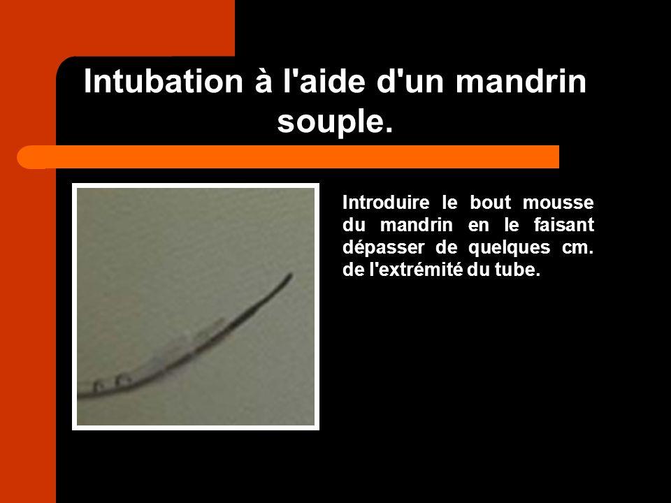 Intubation à l aide d un mandrin souple.