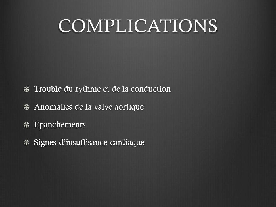 COMPLICATIONS Trouble du rythme et de la conduction