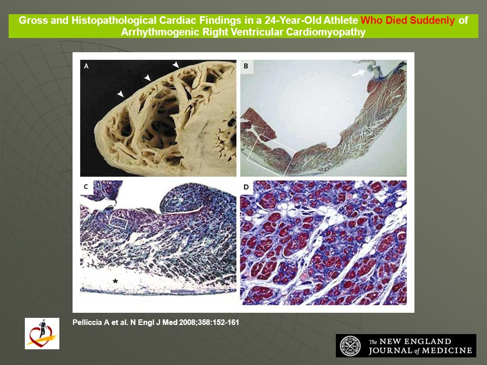 Gross and Histopathological Cardiac Findings in a 24-Year-Old Athlete Who Died Suddenly of Arrhythmogenic Right Ventricular Cardiomyopathy