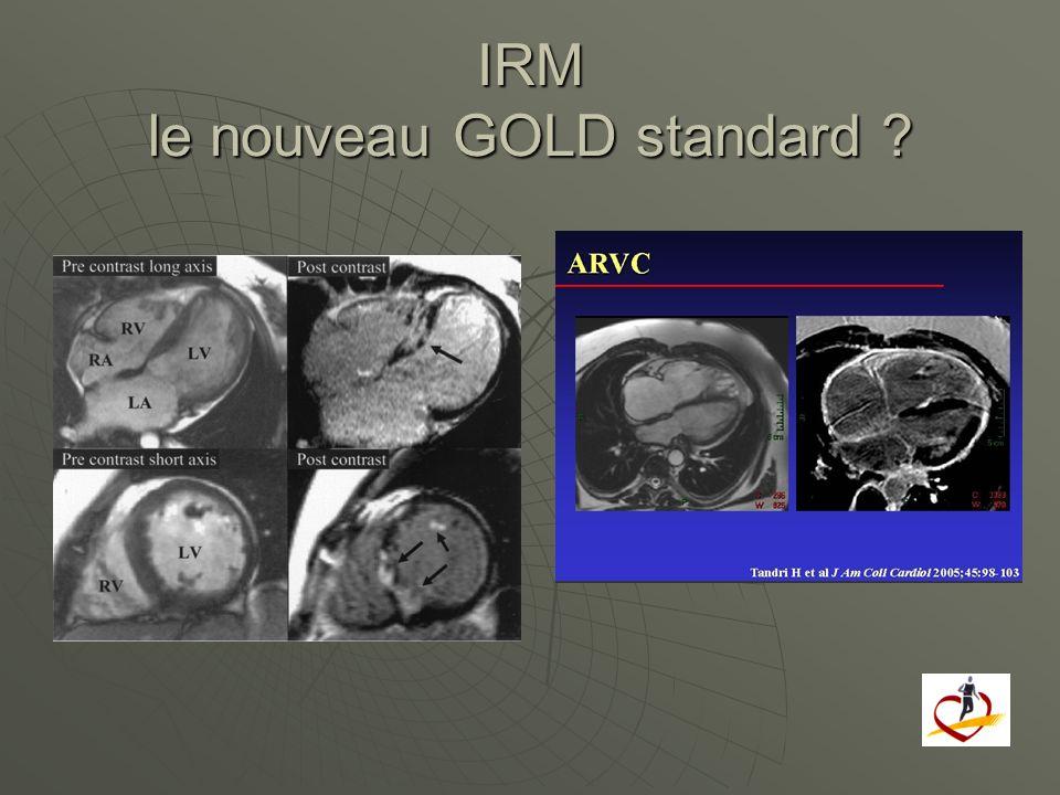 IRM le nouveau GOLD standard