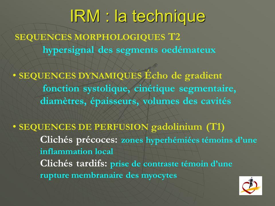 IRM : la technique hypersignal des segments oedémateux