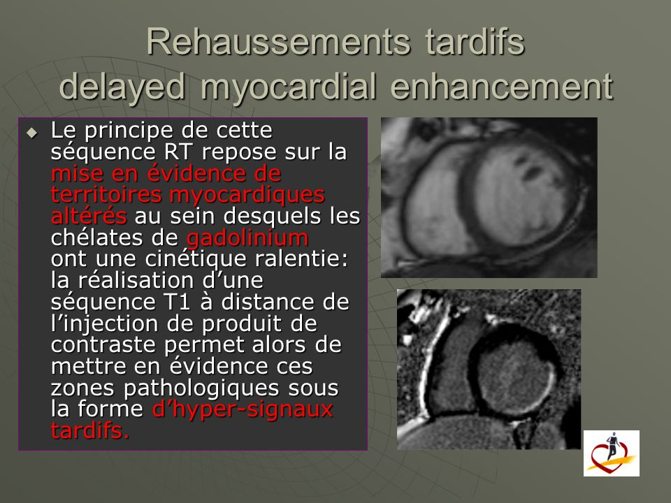 Rehaussements tardifs delayed myocardial enhancement