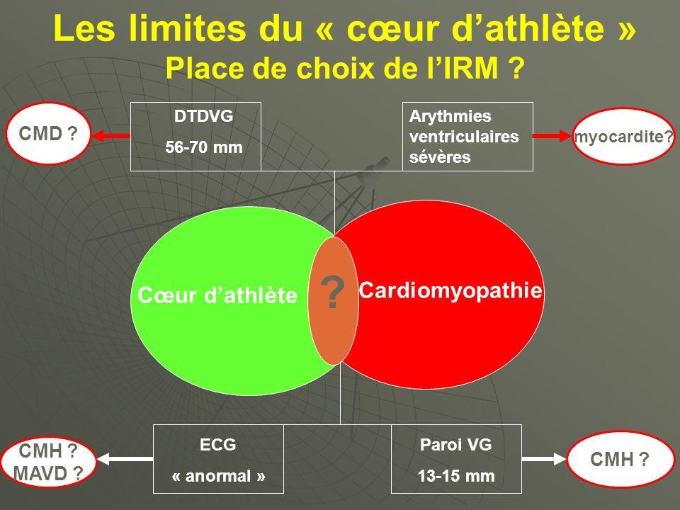 Les limites du « cœur d'athlète »