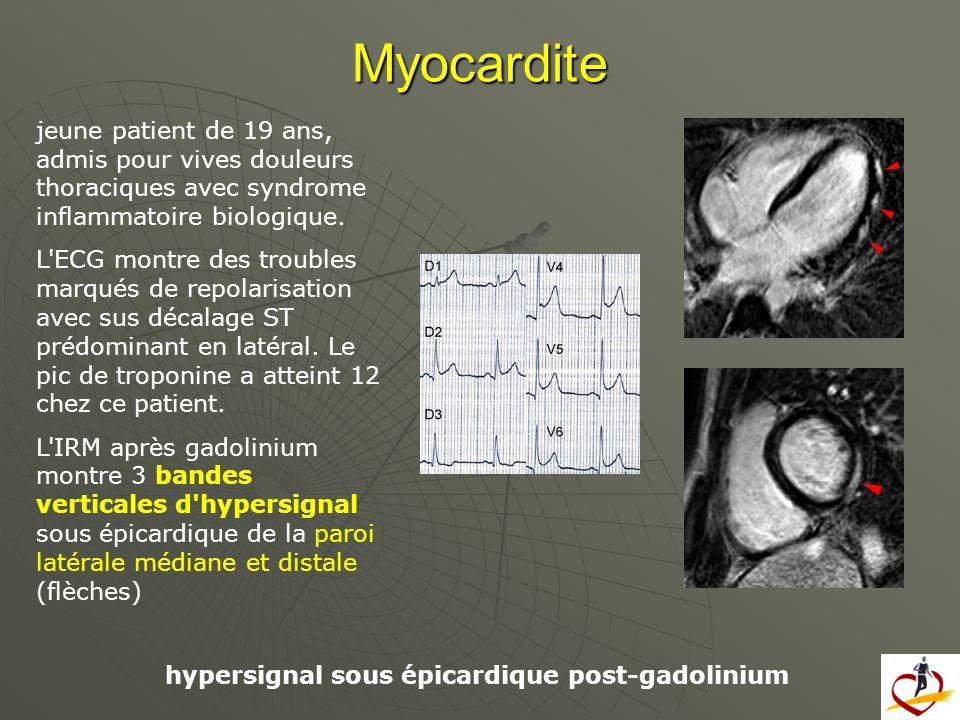 Myocardite jeune patient de 19 ans, admis pour vives douleurs thoraciques avec syndrome inflammatoire biologique.