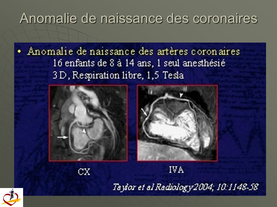 Anomalie de naissance des coronaires