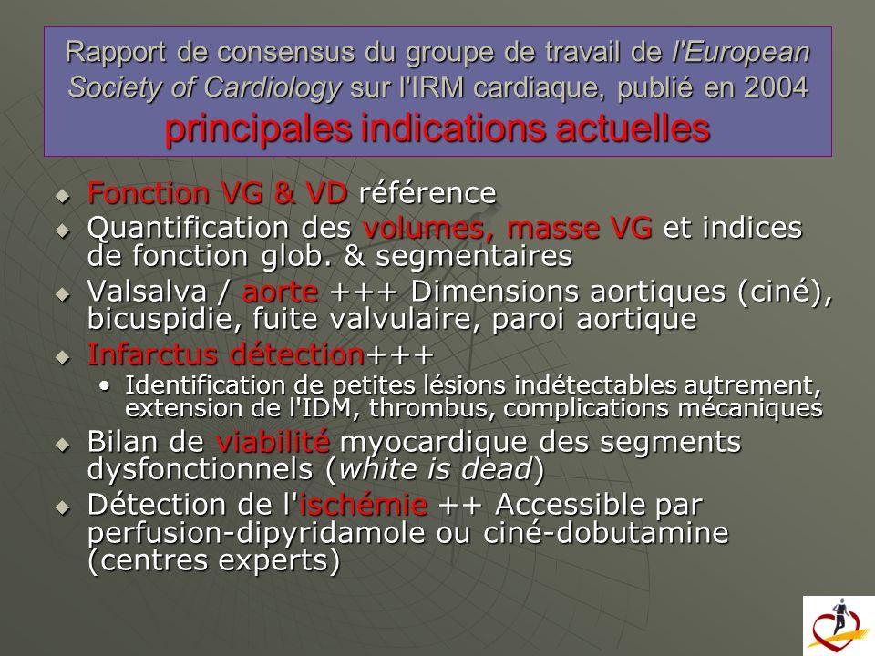 Fonction VG & VD référence