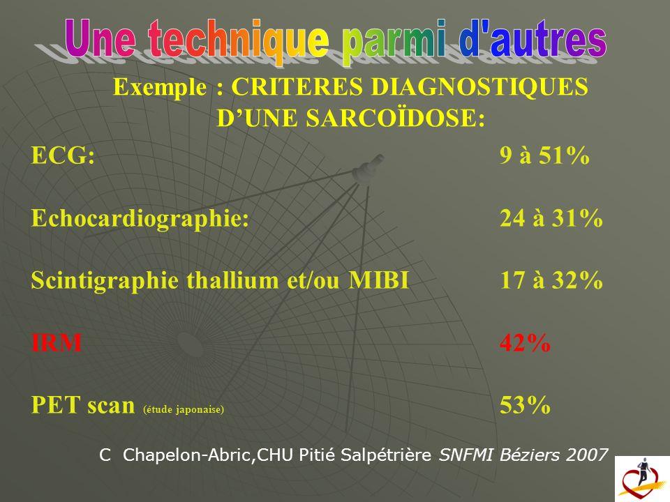 Exemple : CRITERES DIAGNOSTIQUES D'UNE SARCOÏDOSE: