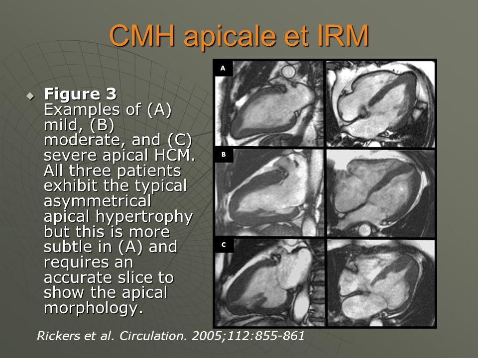 CMH apicale et IRM