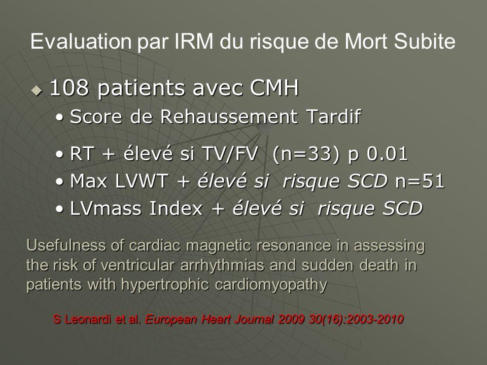Evaluation par IRM du risque de Mort Subite
