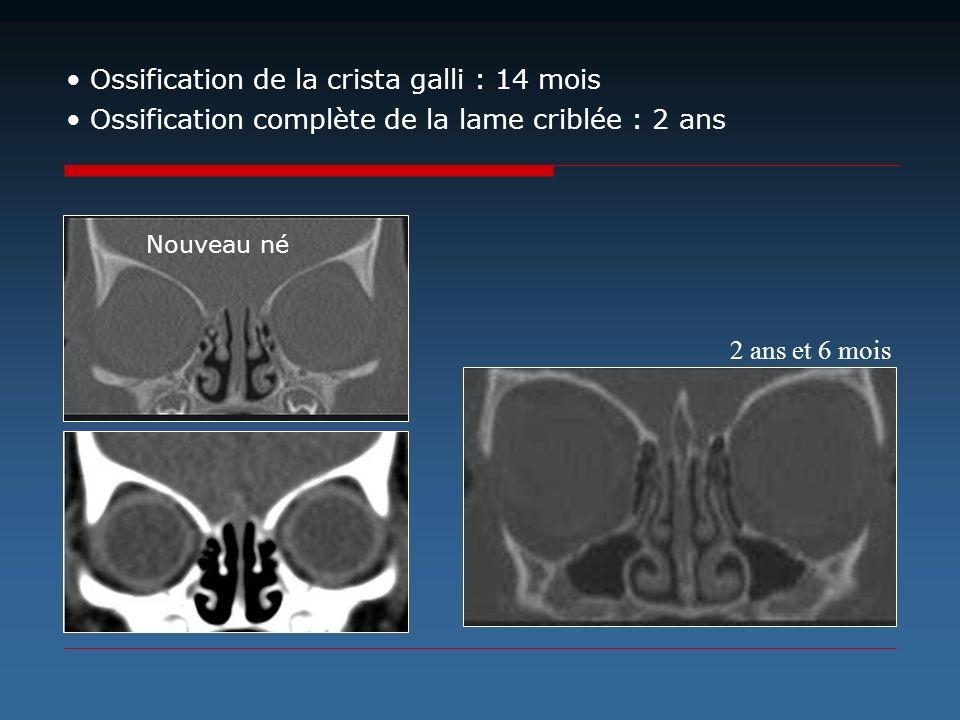 Ossification de la crista galli : 14 mois