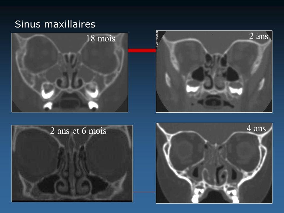 Sinus maxillaires 2 ans 18 mois 4 ans 2 ans et 6 mois