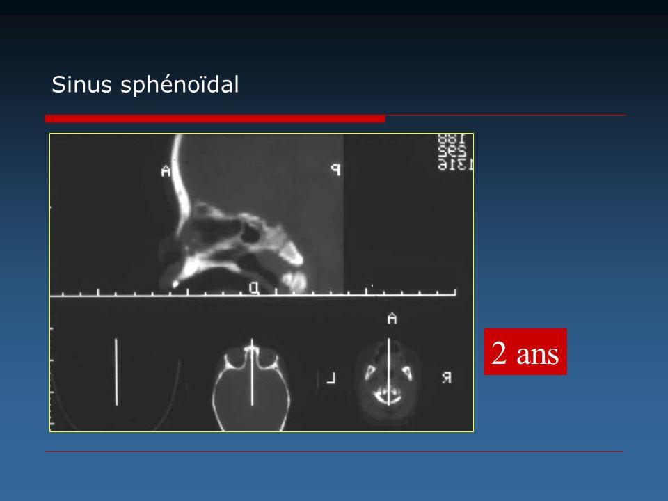 Sinus sphénoïdal 2 ans